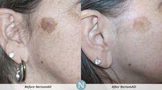 Before & After sampierce1.nerium.com