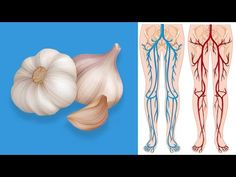 11 Miracle Cures of Garlic That Will Surprise You - Benefits Of Garlic For Your Health Garlic Extract, Garlic Benefits, Raw Garlic, Blood Sugar Levels, Cardiovascular Health, Cholesterol Levels, The Cure, Baked Shrimp, Youtube