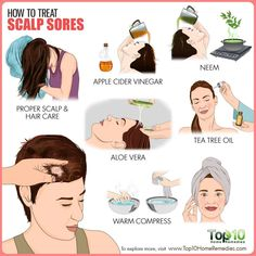 How to Treat Scalp Sores Are you experiencing pain while brushing or combing your hair? Itchy Flaky Scalp, Itchy Scalp Remedy, Causes Of Itchy Scalp, Sores On Scalp, Top 10 Home Remedies, Natural Remedies, Natural Dandruff Remedy, Hair Remedies, Exercises