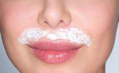 Home Remedies for Dark Upper Lip Shadow