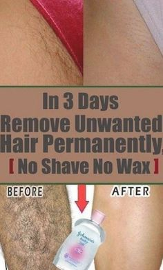 In 3 Days Remove Unwanted Hair Permanently, No Shave No Wax, Removal Facial & Body Hair Permanently - PowerfulRemedy #UnwantedHairRemovalDiy #VcareUnwantedHairRemovalCost #HairRemovalMachine Best Permanent Hair Removal, Upper Lip Hair Removal, Back Hair Removal, Underarm Hair Removal, Electrolysis Hair Removal, Hair Removal Diy, Hair Removal Methods, Hair Removal Cream, Remove Unwanted Facial Hair