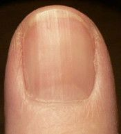 Very informative article on the different signs of deficiencies from the way fingernails look.