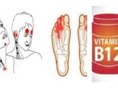Vitamin is crucial for physical and mental health. These are Pernicious anemia and deficiency symptoms that you should take care of right away. Health Remedies, Home Remedies, Natural Remedies, Health And Beauty, Health And Wellness, Health Tips, Mental Health, Vitamin B12 Mangel, Inflammation Of The Stomach