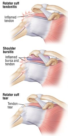 Rotator Cuff Injury Guide: Causes, Symptoms and Treatment Options Shoulder Tendonitis, Shoulder Injuries, Shoulder Injury Symptoms, Shoulder Rehab Exercises, Shoulder Workout, Shoulder Anatomy, Shoulder Pain Relief, Shoulder Surgery, Medical Anatomy