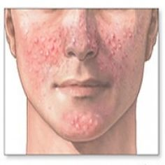 Effective Treatment Options For Acne
