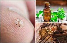 7 æteriske olier, der hjælper dig med at slippe for vorter Skin Tag, Young Living Oils, Warts, Gold Rings, Essential Oils, Remedies, Geek Stuff, Health, Wellness
