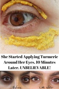 Turmuric for dark circles
