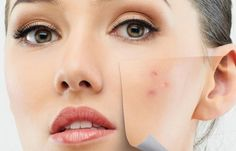 Several methods applied at home spend acnes and another fast ways to get rid of pimplesare good for your health.