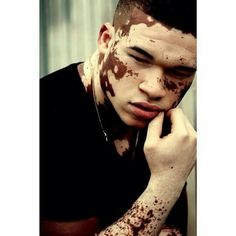 10 Best Men With Vitiligo Images Vitiligo Vitiligo Treatment Vitiligo Cure