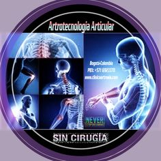Artrotecnología Articular, Lo último y mas avanzado en tecnologias médicas contra la artrosis y el desgaste articular. Prevenga el reemplazo articular en forma efectiva con lo último en tecnología médica científica de avanzada. Visítenos en la Clínica de Artrosis y Osteoporosis www.clinicaartrosis.com PBX: +571-6836020, Teléfono Móvil: +57-3002597226 en Bogotá - Colombia.