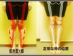 筋肉型X脚