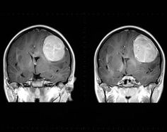 Meningioma - coronal view