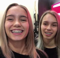 Lisa and Lena Braces Girls, Cute Braces, Lisa Or Lena, Verona, Besties, Chill, Twins, Eggs, Women's Fashion