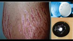 GET RID OF STRETCH MARKS VERY FAST USING ASPIRIN - YouTube