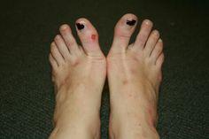 Ouch Ballerina Feet, Ballet Feet
