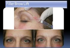 Non Surgical Brow Lift With Fillers And Botox - - jpeg Botox Brow Lift, Eyebrow Lift, Botox Injections, Online Images, Eyebrows, Facial, Cosmetics, Arcade, Aesthetics