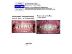 Casi clinici ortodontici Morso crociato monolaterale destro http://www.studiodentisticobalestro.com/2014/06/morso-crociato-monolaterale-destro.html