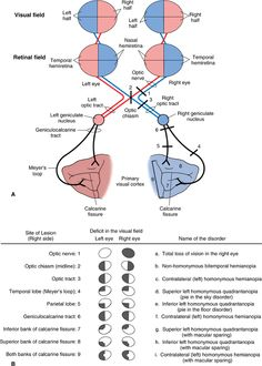 Deficits After a Lesion at Different Sites in the Visual Pathway