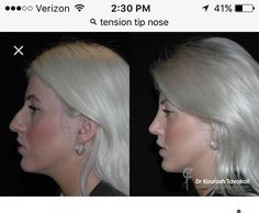 Nose Reshaping, Plastic Surgery, Beautiful World, Make Up, Photoshop, Celebs, Actresses, Nose Jobs, Lady