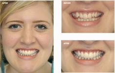 A straighter smile can be the improvement you need to catapult your life to the next level of success and happiness. Bury Dental Centre can help fast.