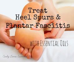 Curly Loves Essential Oils: Treat Heel Spurs and Plantar Fasciitis with Essential Oil