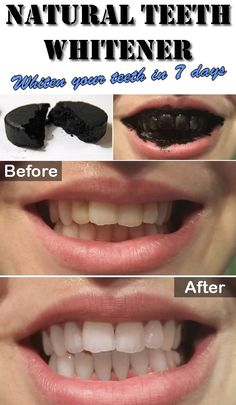 It is amazing how activated charcoal works as a natural teeth whitener, used once a week as regular teeth cleaning maintenance. Activated charcoal works well but it can be very messy as in staining clothing and counter tops. For the 1st week, every night before bedtime brush teeth as normal. ==