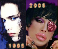 Pete Burns of Dead or Alive before and after plastic surgery pics