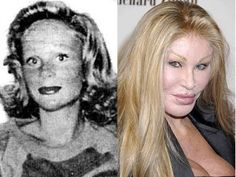"""Jocelyn Wildenstein: Before and After Plastic Surgery. Famously Known As """"Cat Woman."""" Don't Mess With Her Or She Will Claw Your Eyes Out!"""