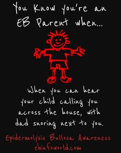 You know you're an EB parent when... you can hear your child calling you across…