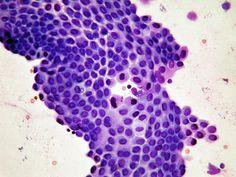 Mesothelium cells