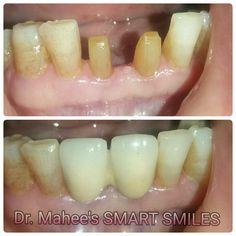 Abnormal Dental Bridge Benefits Of Smile Dental, Dental Care, Dental Bridge Cost, Tooth Powder, Dental Laboratory, Teeth Implants, Health Logo, Cosmetic Dentistry, Tooth Fairy