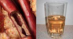 napój na zatkane tętnice