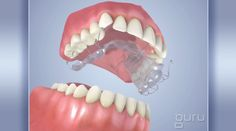 OrthodonticAppliance-EXT