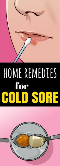 Clear Up A Cold Sore & 1 dieser 5 Hausmittel … ! Clear Up A Cold Sore & 1 dieser 5 Hausmittel … ! Foot Warts, Warts On Hands, Warts On Face, Home Remedies For Warts, Cold Home Remedies, Natural Remedies, Cold Sore Remedy Fast, Natural Cold Sore Remedy, Get Rid Of Warts
