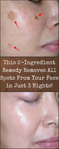 The Face, Face And Body, Face Skin, Health And Beauty Tips, Health Tips, Health Benefits, Key Health, Health Guru, Beauty Care