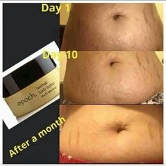 Great results from our Epoch Baobab Body Butter!