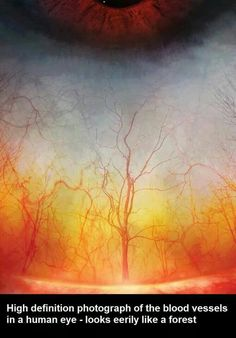 High definition photograph of the blood vessels of the human eye. It looks eerily like a forest.