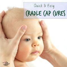 7 Natural Cradle Cap Treatments That Really Work (photos)