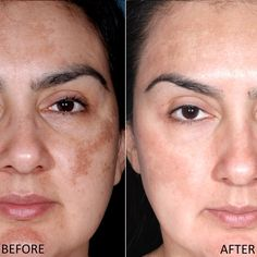 Happy Skin, Moisturizer With Spf, How To Get Rid Of Acne, Prevent Wrinkles, Acne Remedies, How To Treat Acne, Skin Brightening, Acne Scars, Healthy Skin