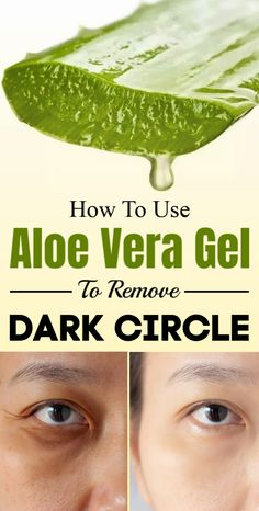 How To Use Aloe Vera Gel Effectively To Remove Dark Circle Fast at Home. Care Skin Condition and Treatment Oil Makeup Fresh Aloe Vera, Aloe Vera Gel, Simply Health, Dark Circles Under Eyes, Natural Health Remedies, Natural Cures, Natural Healing, Herbal Remedies, Dark Eyes