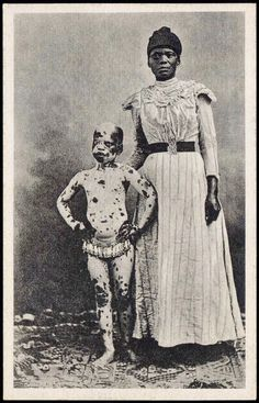 1910s Mozambique  Boy with Leopard Skin