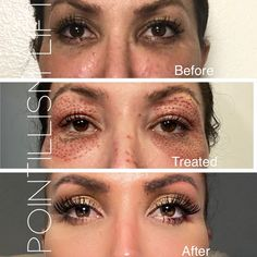 Lift and tighten the eye area in 1 plasma fibroblast treatment! Skin Secrets, Beauty Secrets, Skin Tips, Beauty Tips, Medical Aesthetician, Beauty Care, Face Beauty, Beauty Skin, Facial Aesthetics