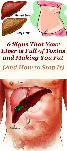 10 Signs That Your Liver Is Unhealthy - aBeautiful Women -> Liver Detox Cleanse, Detox Your Liver, Detox Diet Plan, Full Body Detox, Detox Your Body, Natural Liver Detox, Natural Health, Digestive Detox, Cleanse Program