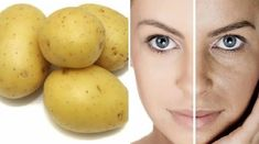 Skin whitening/brightening using just this natural ingredients Remover Manchas, Hypothyroidism Diet, Tips Belleza, Belleza Natural, Beauty Recipe, Body Treatments, Natural Health, Body Care, Health And Beauty