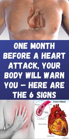One Month Before a Heart Attack, Your Body Will Warn You – Here are the 6 Signs - Health and Beauty Natural Remedies For Allergies, Natural Headache Remedies, Natural Remedies For Anxiety, Sleep Remedies, Hair Remedies, Health And Fitness Articles, Health Tips, Health And Wellness, Health Fitness