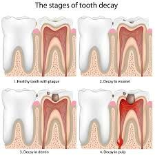 18 Best Cosmetic Dentistry Austin | Family Dentistry Of