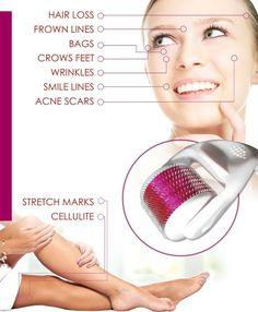 Derma Roller 1.0 mm 540 Needle Titanium for Acne Scars - Royal Derma Roller