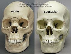 The Difference Between Asian and Caucasian Eyes