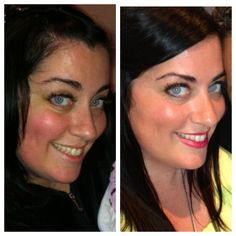 This is 40!!! After 2 months of using Rodan and Fields Macro E! For more info click here:  www.kaleighshannon.myrand.com
