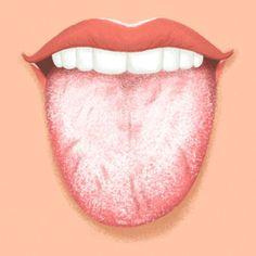 9 dolog, amit a nyelved próbál elmondani az egészségedről Candida Albicans, Tongue Sores, White Tongue, Tongue Health, Weak Immune System, Teeth Implants, Hormonal Changes, Human Anatomy, Menopause